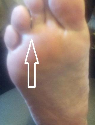 モートン病で足底の痛み